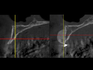 giuseppe cicero rigenerazione ossea roma