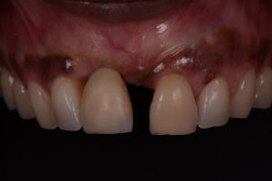giuseppe cicero implantologia roma