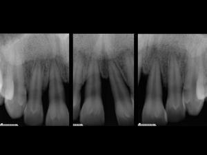 giuseppe cicero parodontologia roma