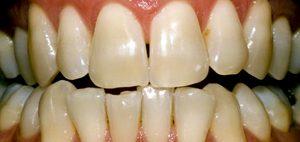 giuseppe cicero sbiancamento dentale roma