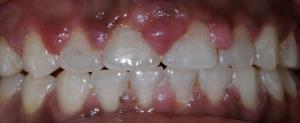 giuseppe cicero dentista roma parioli