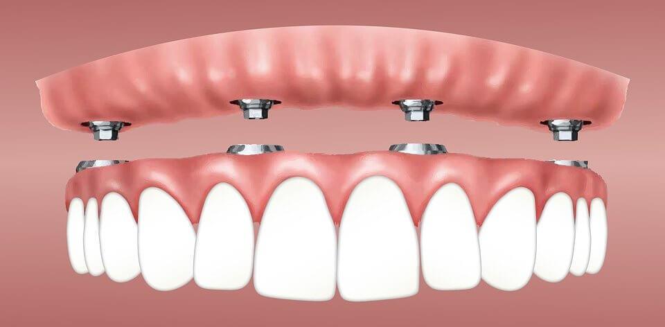 Impianto dentale – Tutto quello che devi sapere