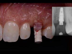 chirurgia parodontale