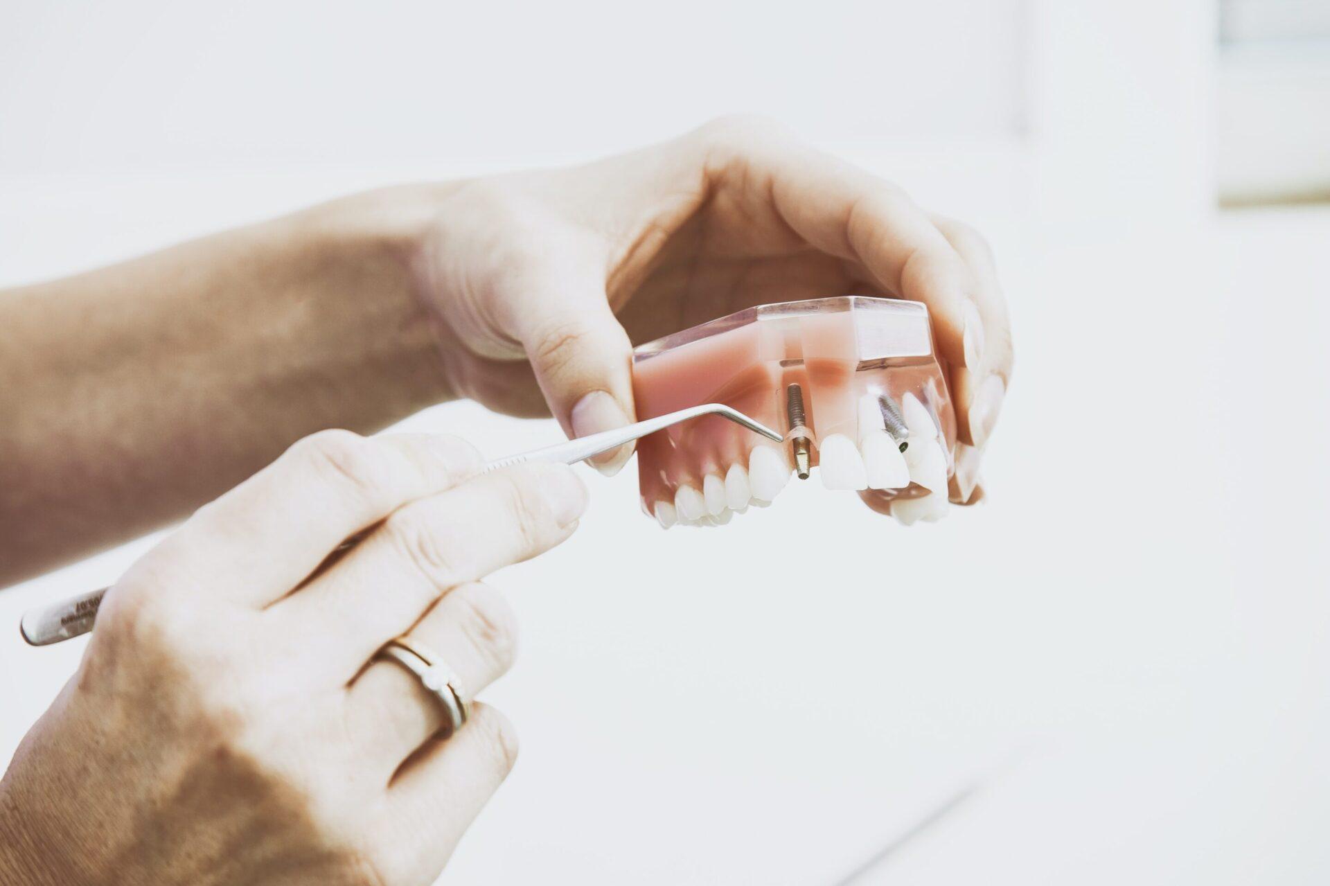 rigetto impianto dentale - dottor giuseppe cicero
